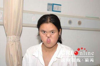 Китаянка прожила без рта 18 лет (ФОТО)
